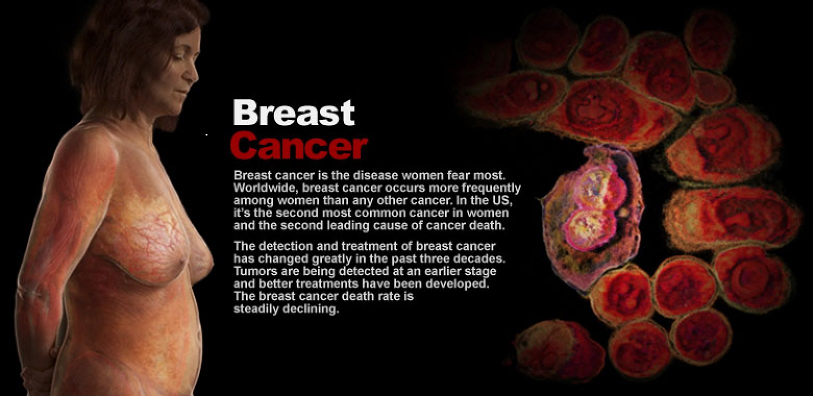 Web In-Depth: Breast Cancer