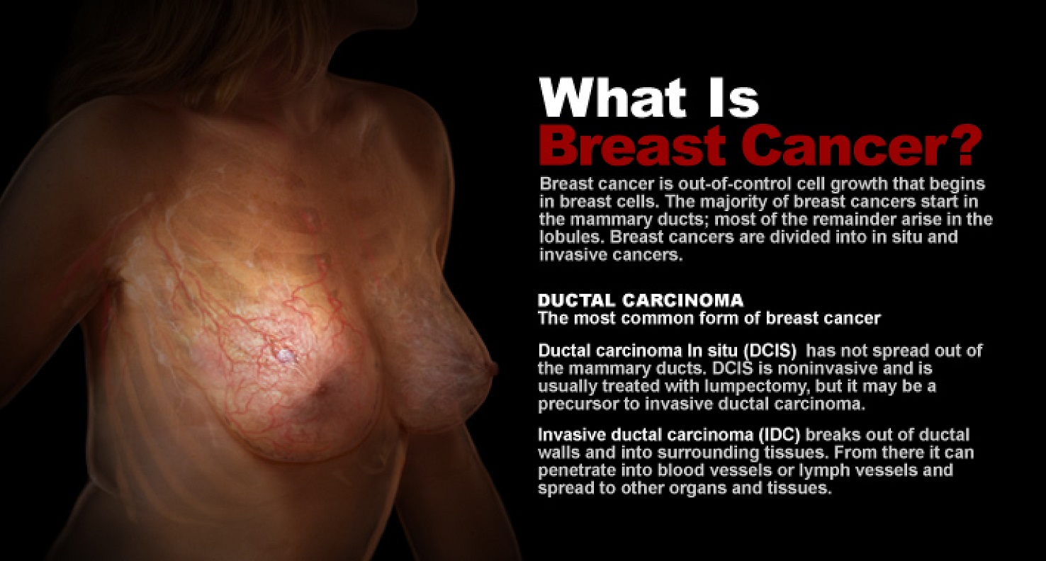 Web In-Depth: Breast Cancer -