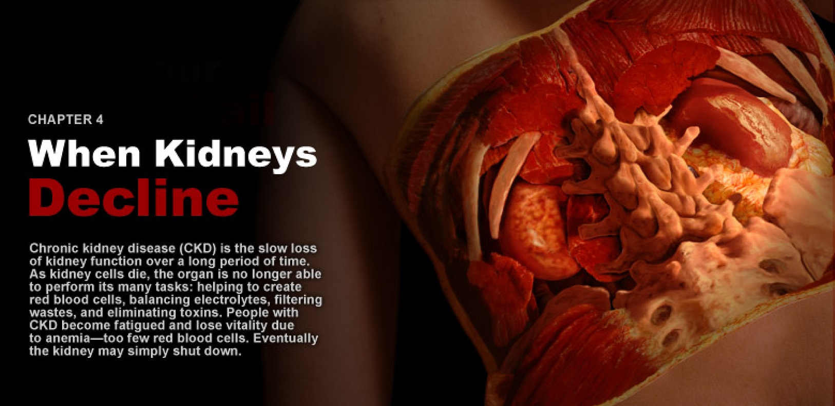 Web In-Depth: Chronic Kidney Disease -